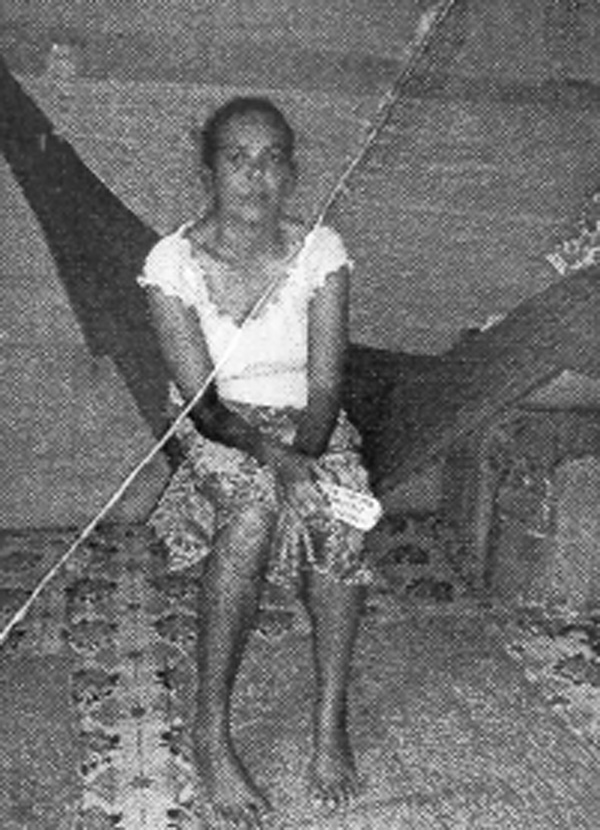 Mahadai Gangaram at her Mon Repos, East Coast Demerara home. She sustained a broken hip during an accident in November last year.
