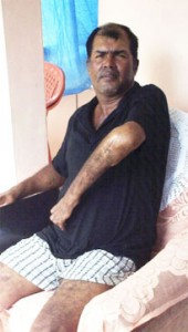 Raymond White displays his shattered arm at his home in Bartica recently.