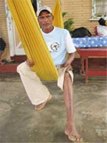 Shivkarran Kishoredat displays the burnson hisfoot.