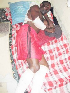 Munilall Ganpat lying in his relatives' home with bandages to his feet, back and hand.