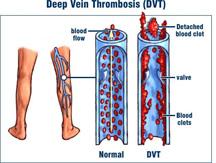 Blood clot in leg veins (DVT): How dangerous it is? – Stabroek News