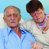 FACIAL INJURIES: Peter and Murium Green show the injuries to their faces.