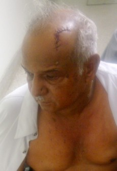 Albert Subhan shows the wound to his head