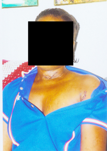 Stephanie Sampson's wounded neck, arm and chest