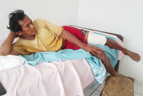 Ivor Antone and his injured leg at the Yupukari health centre after he was bitten by a spectacled caiman.