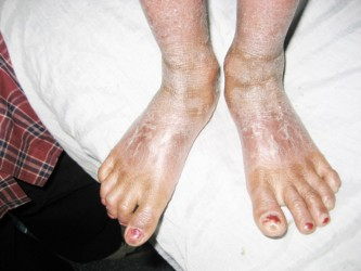 This is what the condition has done to Sasha's feet.