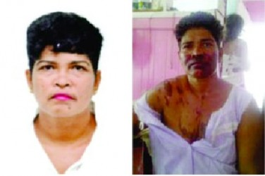 Mala Persaud (Before)                             Mala Persaud (After)
