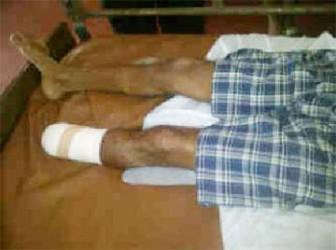 Danny Narayan's severed foot