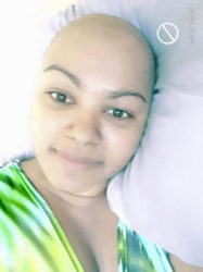 Devika Tinsarran after she lost all her hair due to chemotherapy treatment for breast cancer.