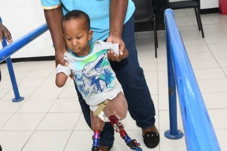 Caregiver Rose helps Mary take her first step after being fitted with prosthetic legs at Surgix Jamaica, located on the compound of the Sir John Golding Rehab Centre, Mona, on Thursday.